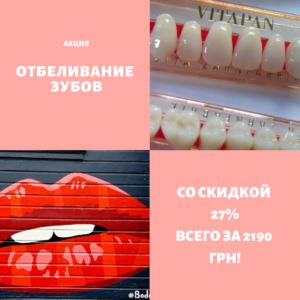 отбеливание зубов акция Киев