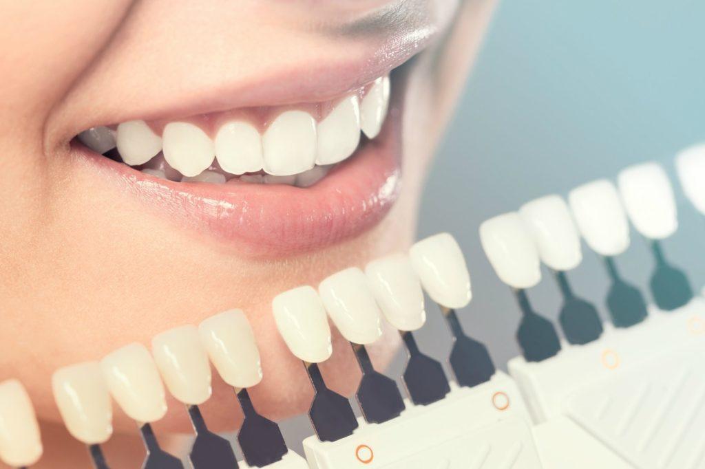 Отбеливание зубов в Киеве цена